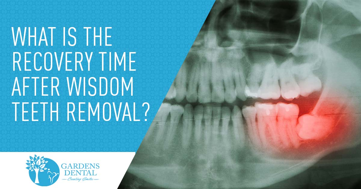 What Is The Recovery Time After Wisdom Teeth Removal