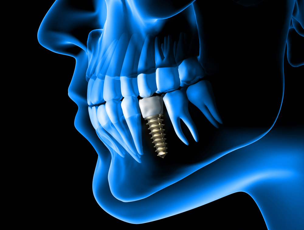 dental implant surgery procedure