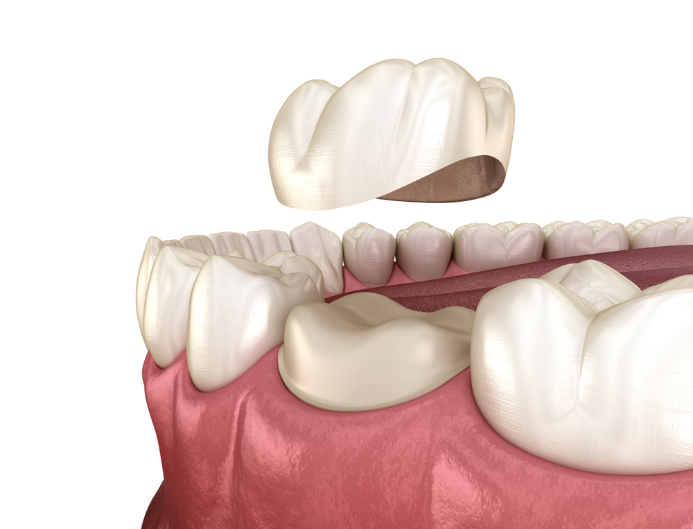 Difference Between Dental Cap or Crown