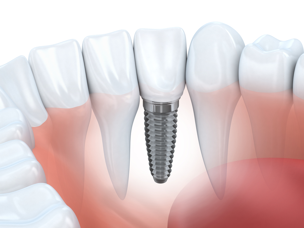 How Long Recovery Time Dental Implants