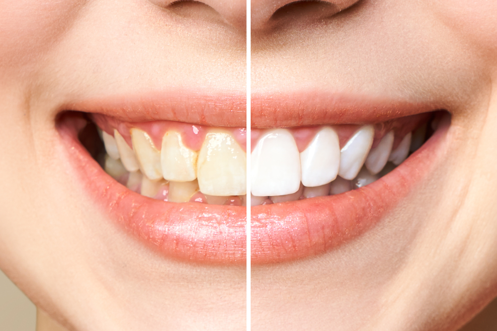 Can Teeth Whitening Damage Teeth