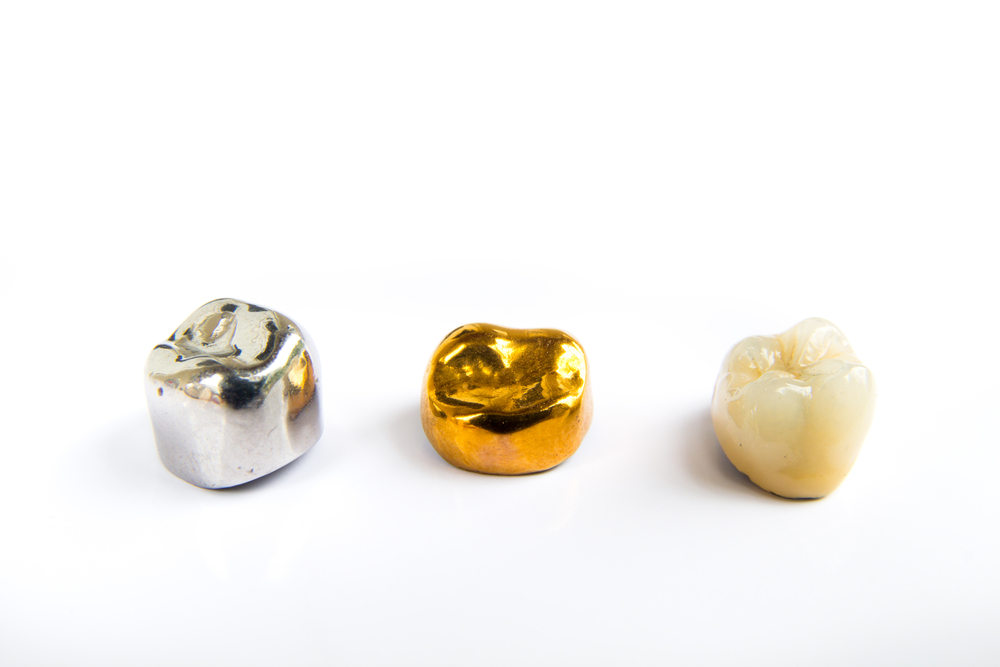 How Often Dental Crown Replaced