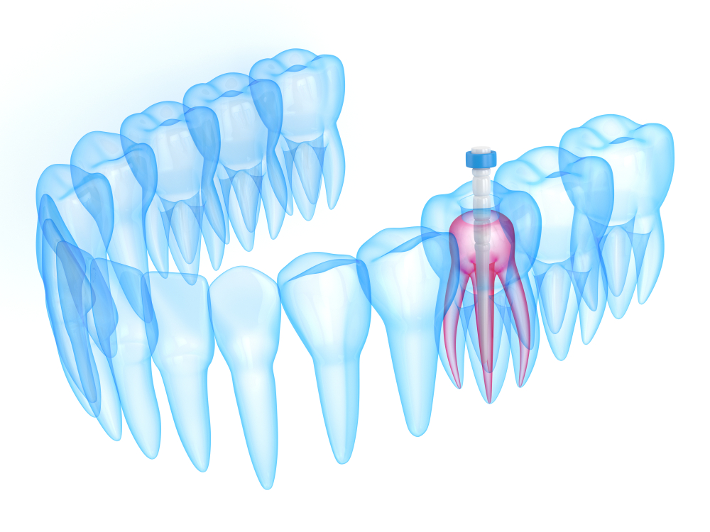 Best Procedure For Root Canal Treatment