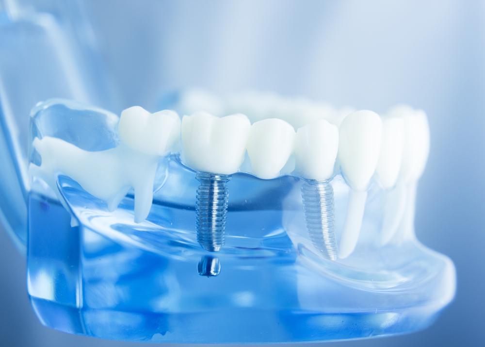 Do Dental Implants Work Like Your Real Teeth